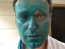 Алексею Навальному плеснули зеленкой в лицо. Ему вызвали «скорую»