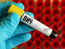 В Москве на 20% возросла заболеваемость ВИЧ